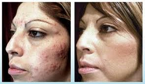 laser acne treatment Denver