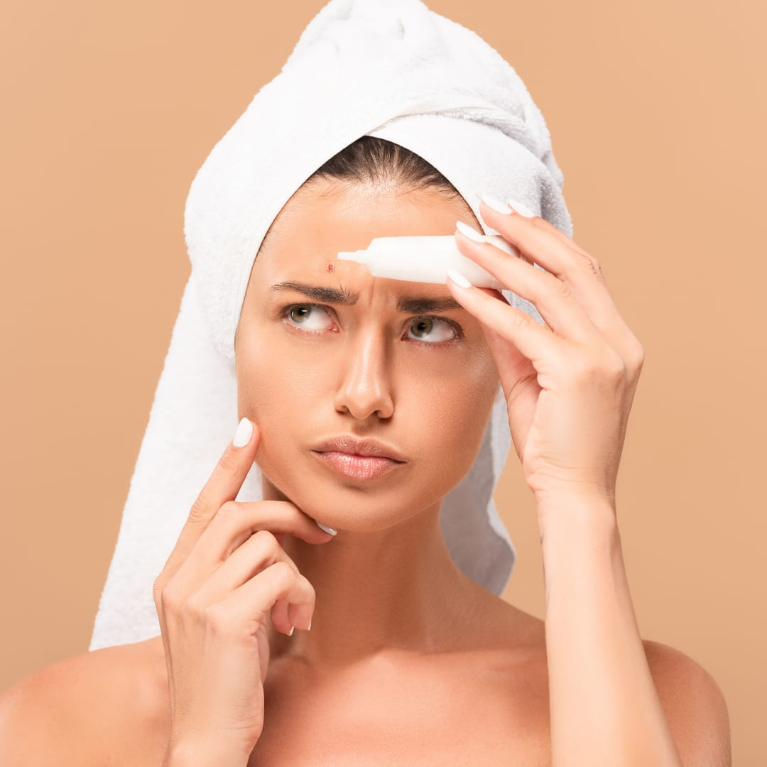 3 Biggest Skincare Mistakes that Aggravate Acne